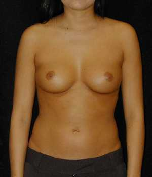 Breast Augmentation Surgery