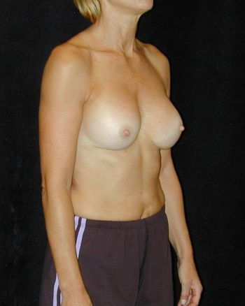 Breast Implant Revision Surgery